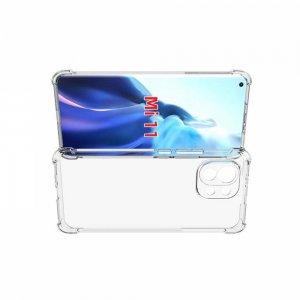 AirBags Case противоударный силиконовый чехол с усиленной защитой для Xiaomi Mi 11 Прозрачный